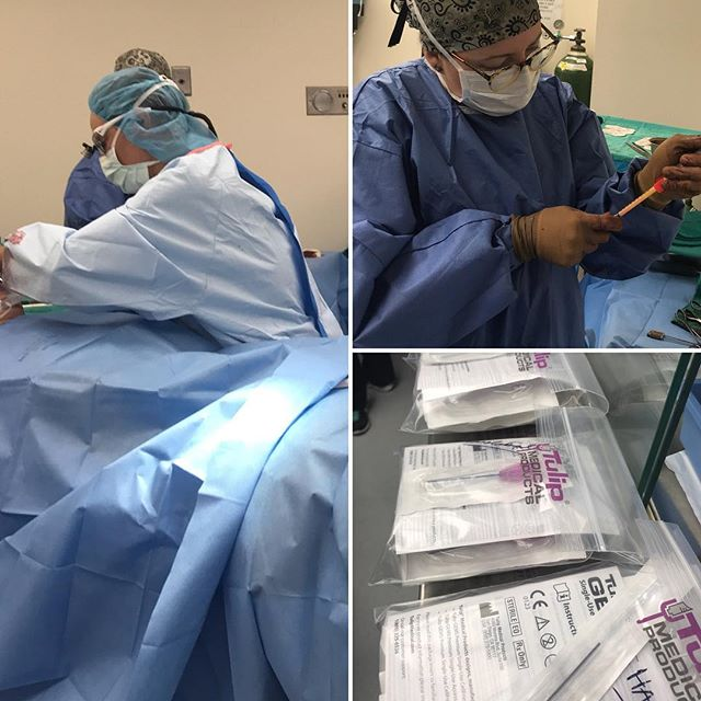 Fat transfer to the Nasolabial folds, marionette lines and temples.  Longer lasting then fillers#fattransfer  #fattransfertohands  #fattransfersobaydoc #swansonplasticsurgery #boardcertifiedplasticsurgeon #fillers