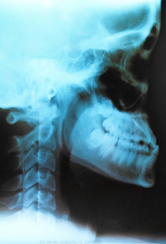 Effectuer une radiographie :Les médecins pratiquant l'ostéopathie exigent une radiographie des cervicales avant d'intervenir sur le patient. « Cette dernière permet d'éliminer une pathologie osseuse, malformative, voire neurologique», explique ainsi le Dr. Norbert Teisseire. Chez les ostéopathes non-médecins, cet examen n'est pas demandé de façon systématique. Michel Sala estime, néanmoins, qu'elle est «obligatoire en cas de traumatisme ». -