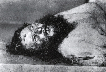 Photo du cadavre de Raspoutine montrant l'impact d'une balle au niveau du front.
