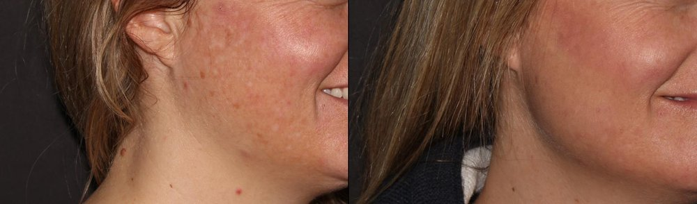 IPL treatment for color correction. Photos taken 2 weeks apart.