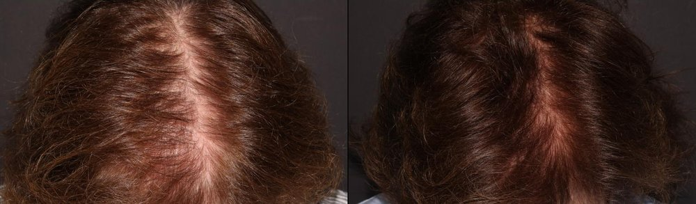 These photos were taken 6 months apart.  During that time this patient received 3 treatments of PRP for hair restoration.
