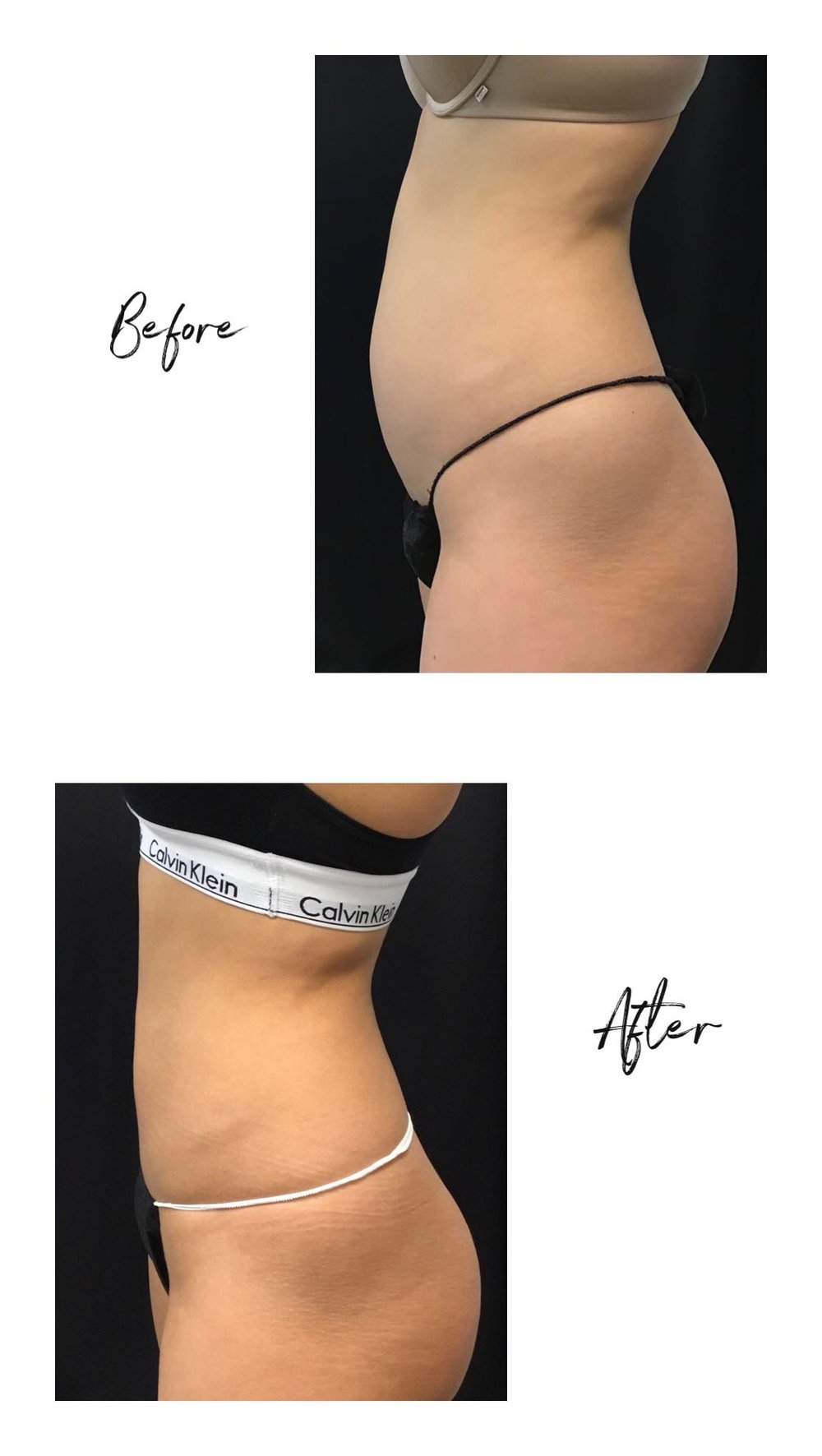 ef9b1d47ce erica luo blogger coolsculpting.JPG
