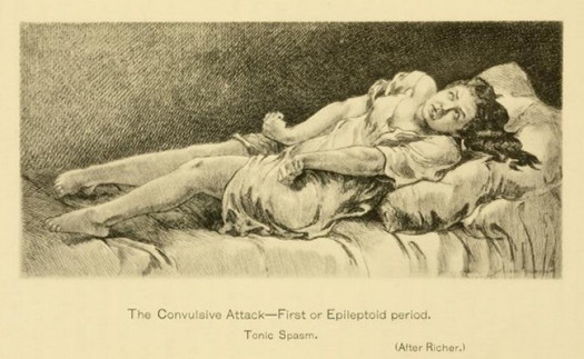 Illustration from Hysteria and Certain Allied Conditions by George J. Preston, M.D. (1897)