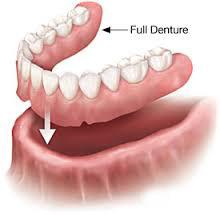 Full Denture.jpg