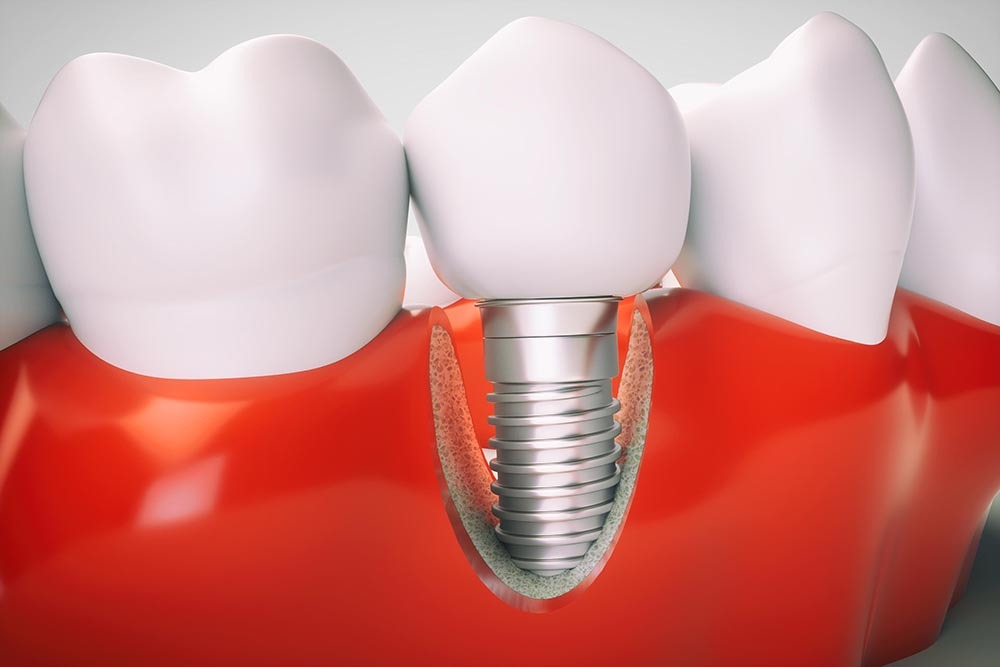 dental-implant-inline-1eca1c.jpg