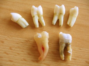 A group of extracted teeth