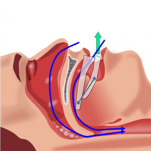 Diagram of Sleep Apnea