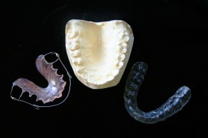 Various dental mouth appliances and mold