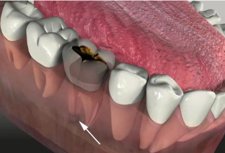 Rubber Filling for Root Canal