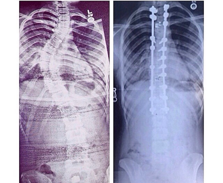 Before & After pictures of my spinal fusion