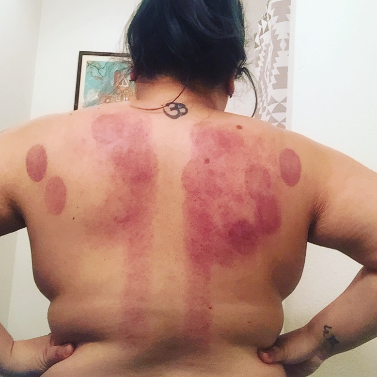 cupping is sort of insane in the good feeling way.