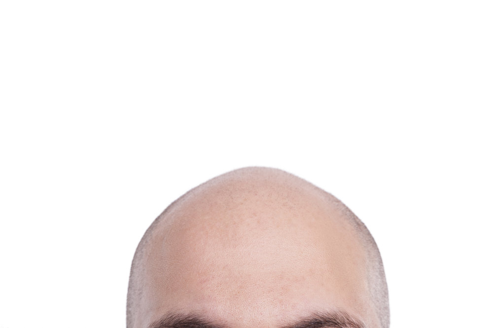 Bald-head.jpeg