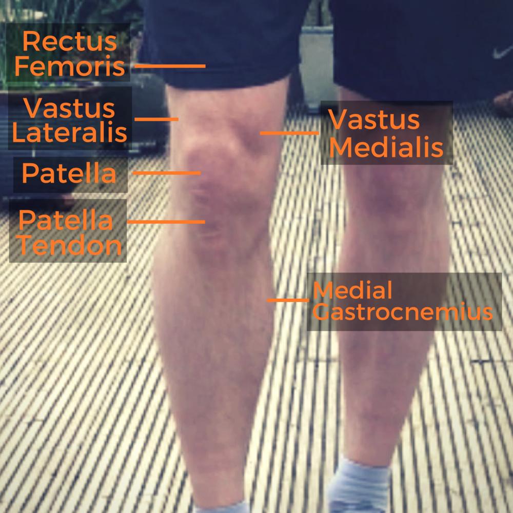 Knee anatomy.png