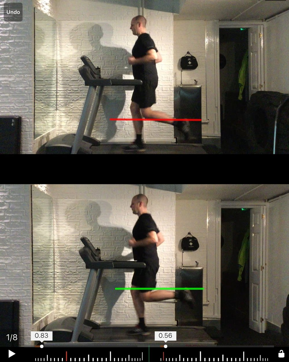 Example of improved heel lift and increased hamstring activation