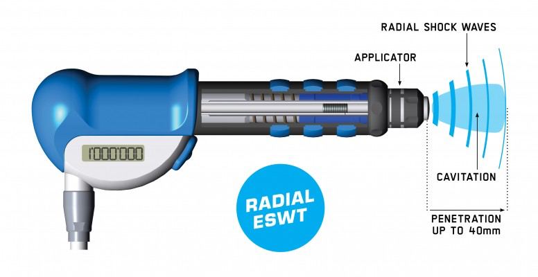 EMS_SDC-Radial_776x400px_Radial_Handpieces_new.jpeg