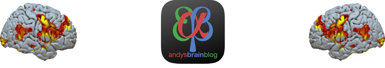 Andy's Brain Blog