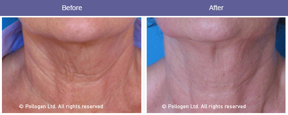 Neck skin tightening after 6 treatments. Courtesy of Dr. DvoraAncona.