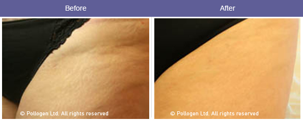 Stretch mark reduction.