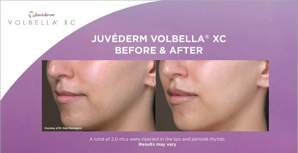 Lip injection using Juvederm Volbella XC which is a more subtle product to add lip volume and soften the appearance of lip lines.