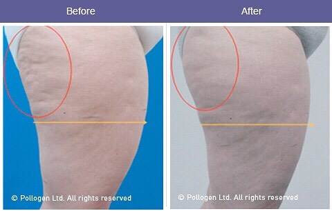 Cellulite improvement after 6 treatments.