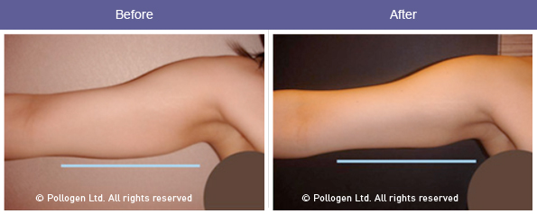 Arm tightening and fat reduction after 7 treatments. Courtesy of Dr. Haim Kaplan.