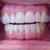 All ceramic crowns. This could be you!