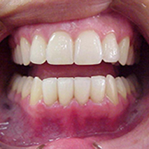 Porcelain crowns lower teeth.