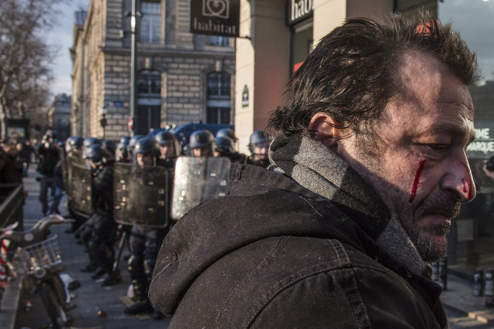 A protestor is seen bleeding following a clash with the police during a demonstration against police brutality at Republique in Paris, France on February 18, 2017.