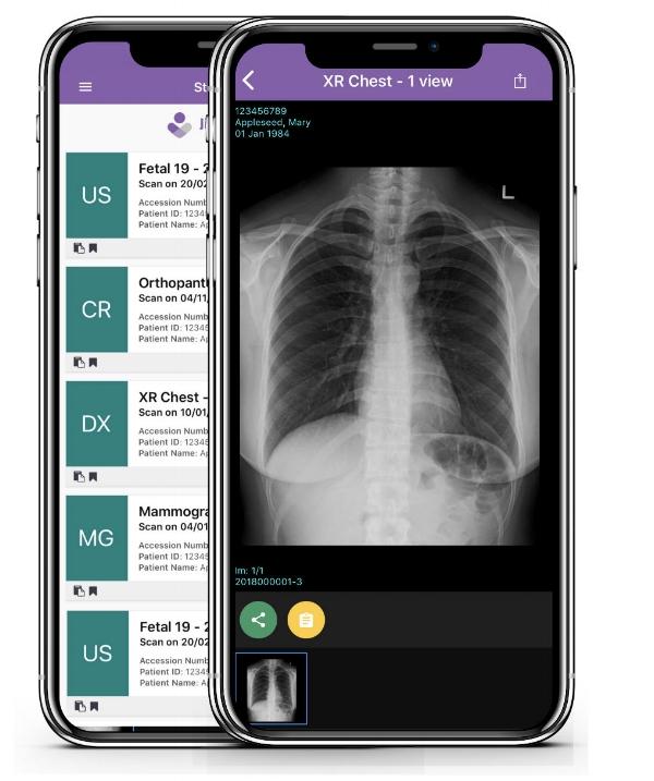 two screens Jinga Doctor_chest.jpg
