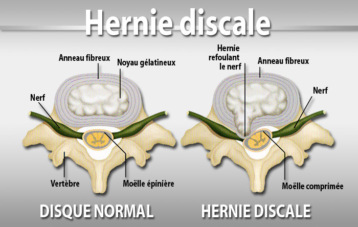 Fig 3 : hernie discale.