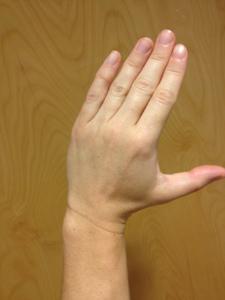 Radial Deviation (left hand)