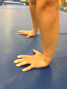 Tfcc Injury The Meniscus Tear Of The Wrist Acro Physical