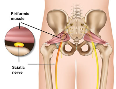 Note the relationship between the piriformis muscle and the sciatic nerve.