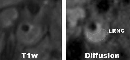 Detecting Lipid Rich Necrotic Core with DW-MRI
