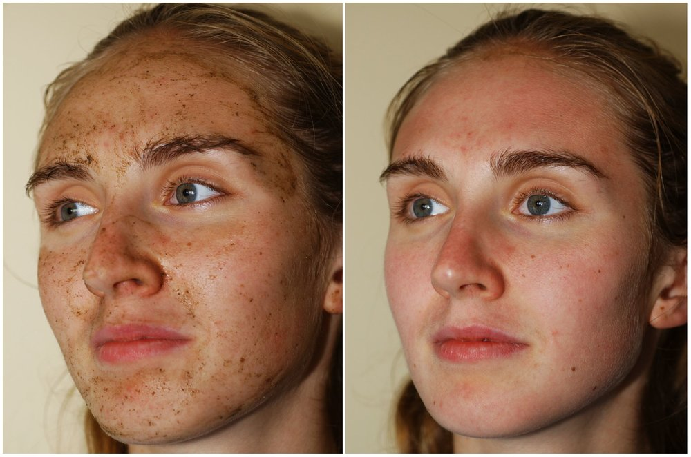 Villani Treatment™ - just applied & just removed
