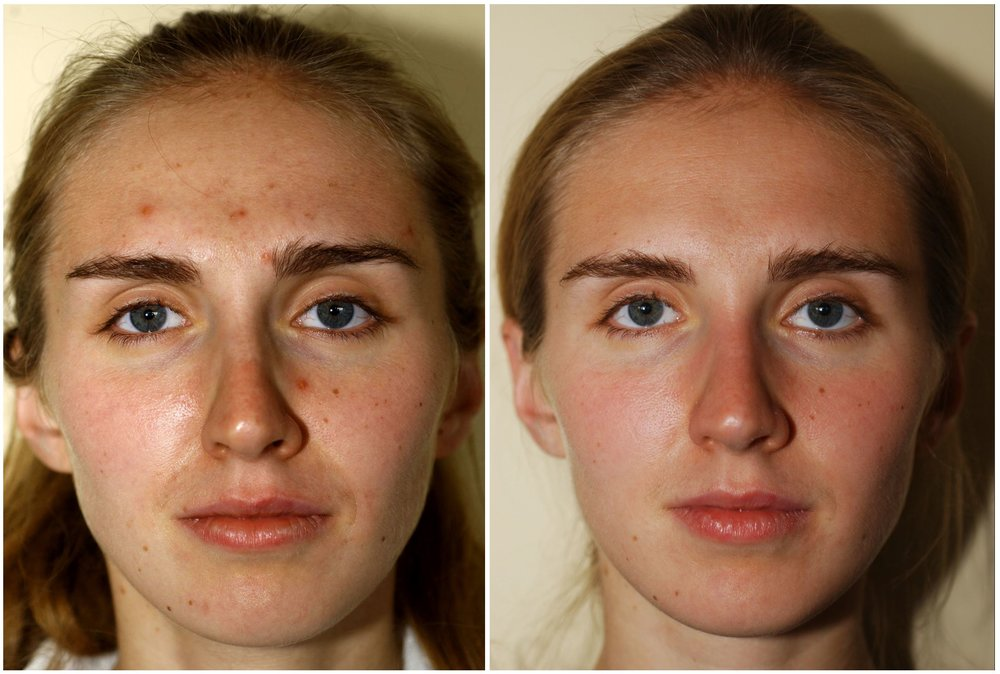 Villani Treatment™ - Before & After One Week - One Treatment