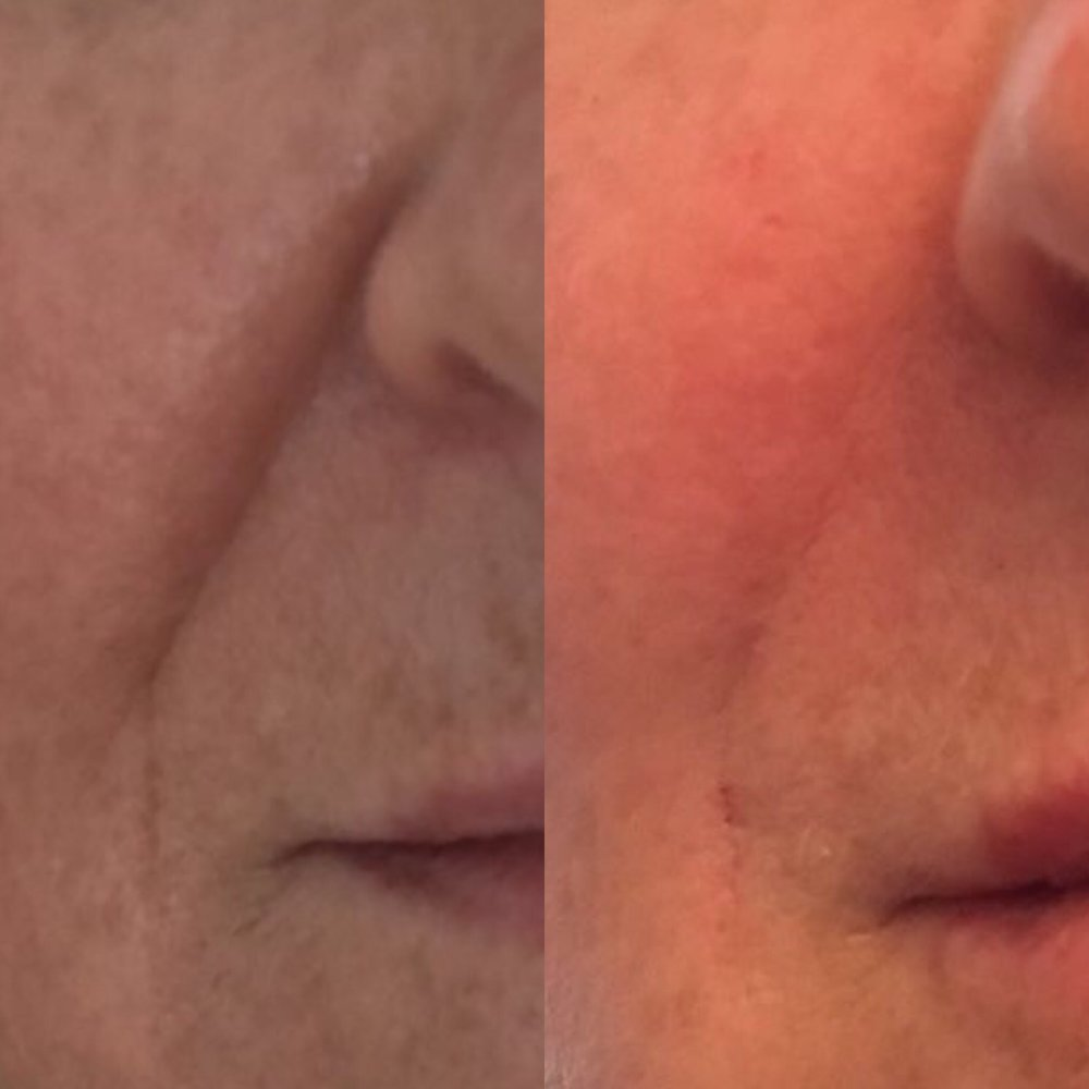 Nasolabial folds treated with Juvederm Ultra. Before and immediately after.