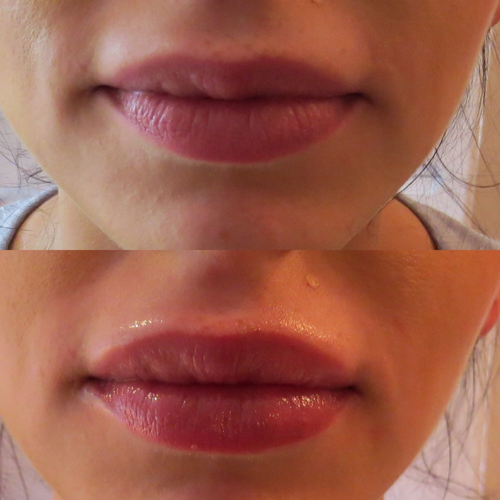 0.5ml Juvederm Smile for additional volume and symmetry