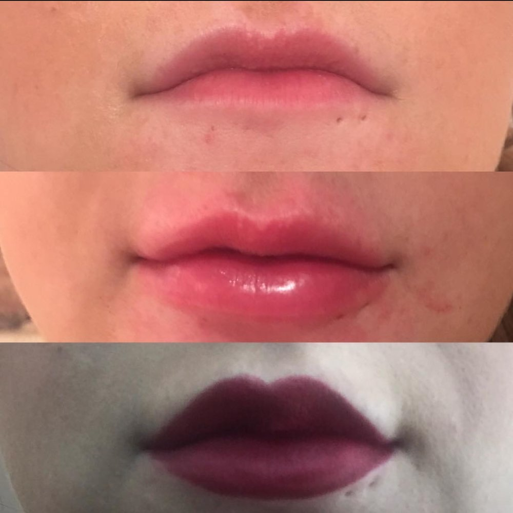 1ml Juvederm for volume and definition of lips