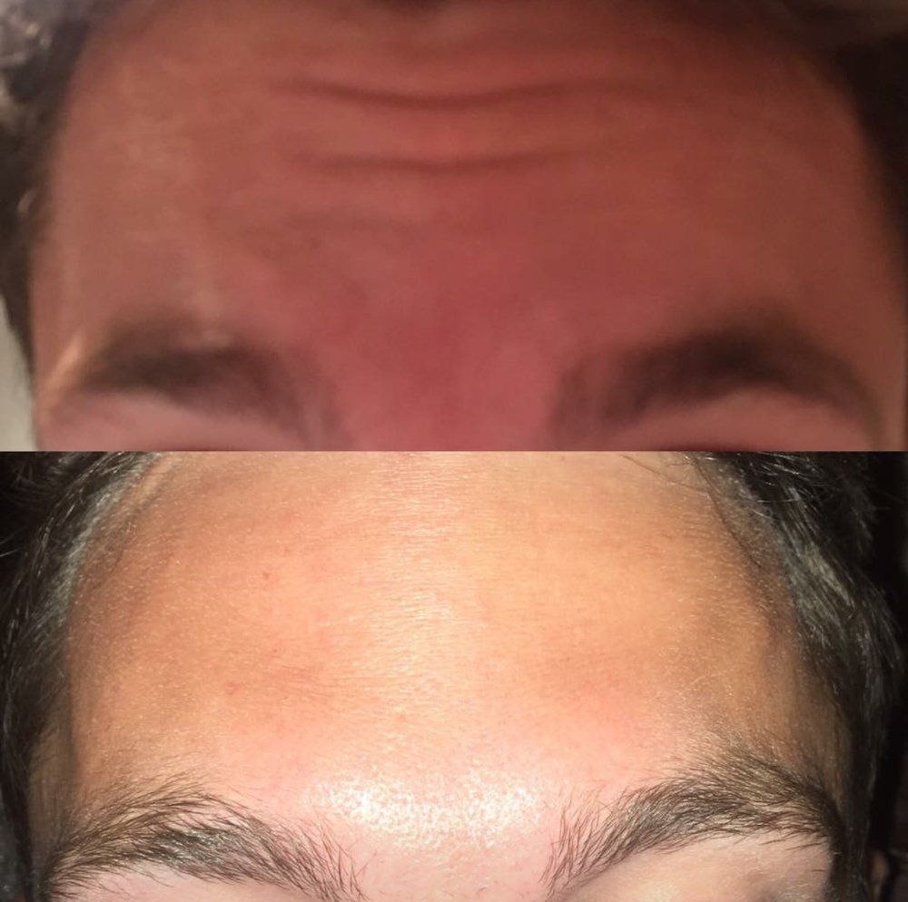 Anti-wrinkle injections to the Forehead