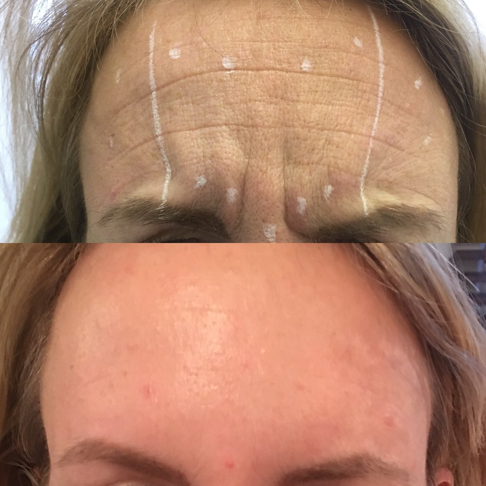 After 1 treatment of Anti-wrinkle injections