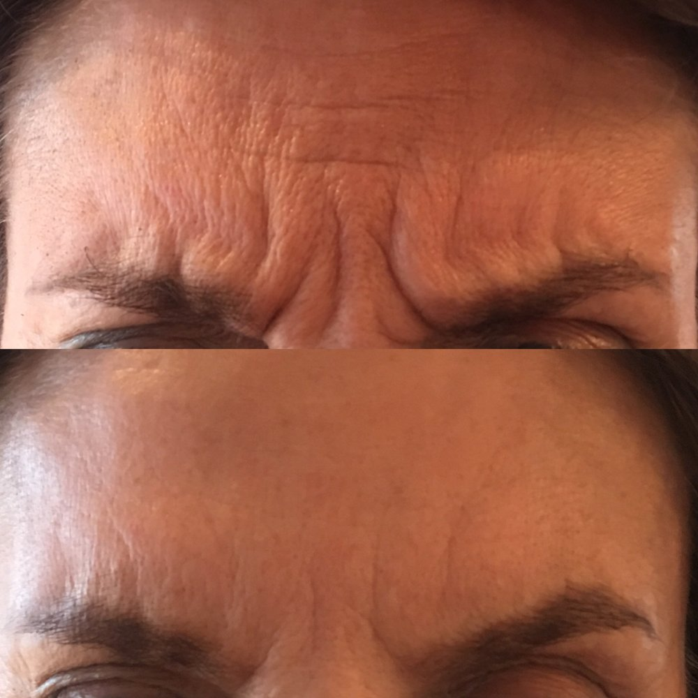 2 weeks after anti-wrinkle injections