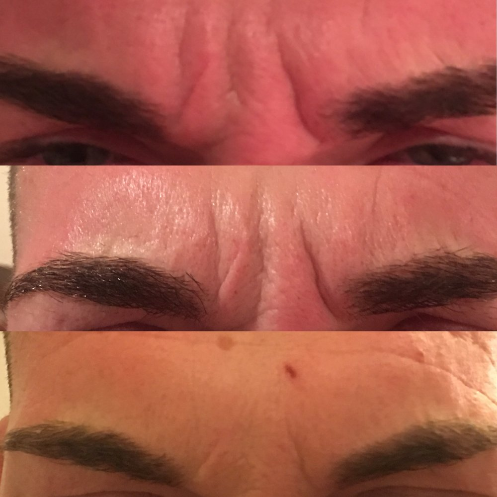 After 2 treatments of anti-wrinkle injections over 4 months