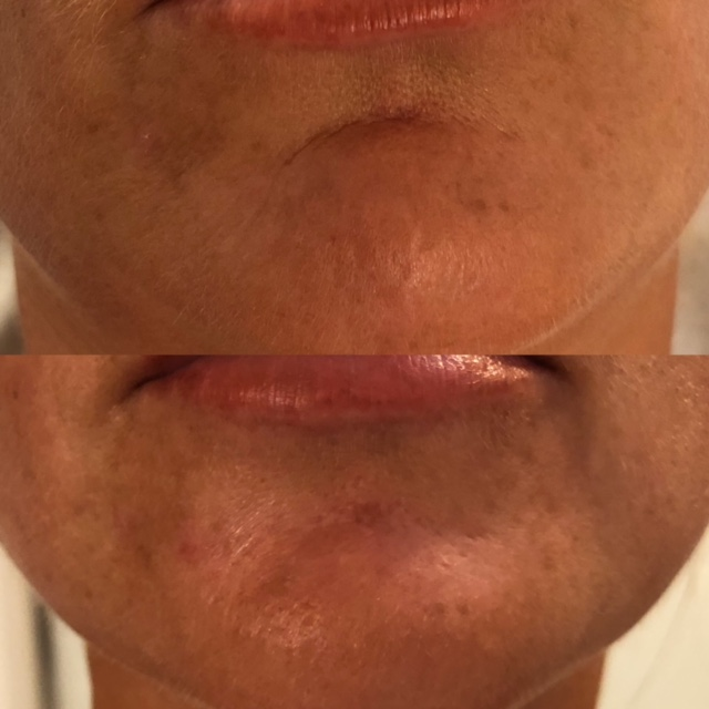 Dermal filler to the mental crease (Crease above chin)