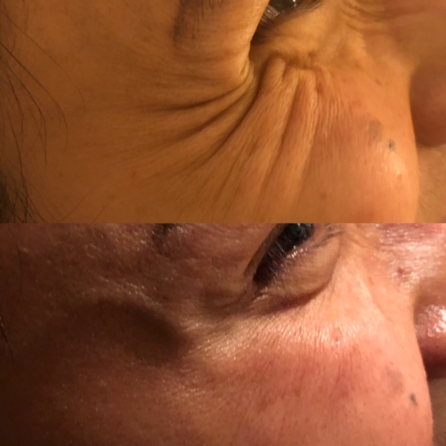 Anti-wrinkle injections to smooth out 'crows feet' around the eye area