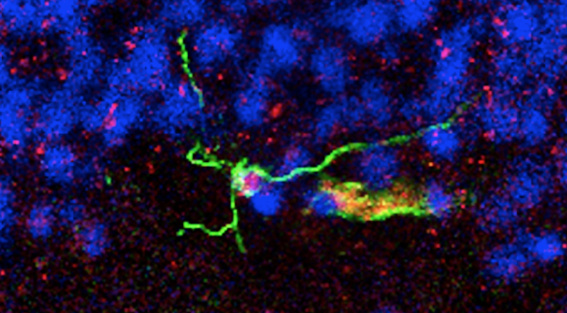 Neural stem cell in an adult brain. Image: Maura Boldrini, Columbia University.