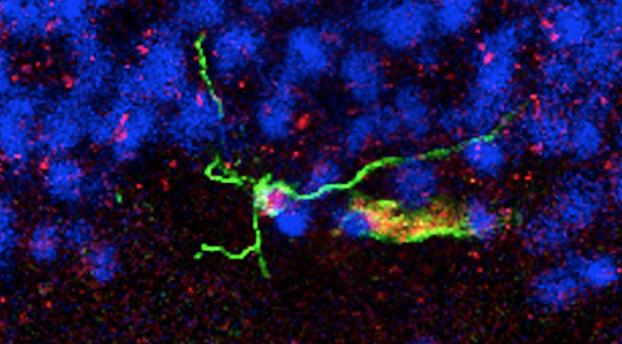 Neural stem cell in an adult brain.Image: Maura Boldrini, Columbia University.