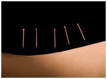 dry-needling-trigger-points.jpg