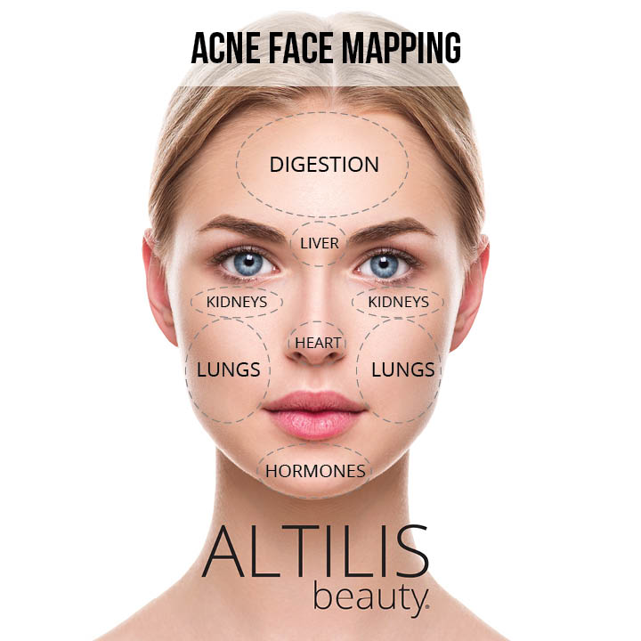 What Your Skin Is Telling You About Your Breakouts — Altilis ... Skin Mapping Acne on zit mapping, anxiety mapping, skin mapping, atrial fibrillation mapping, botox mapping, anthrax mapping,