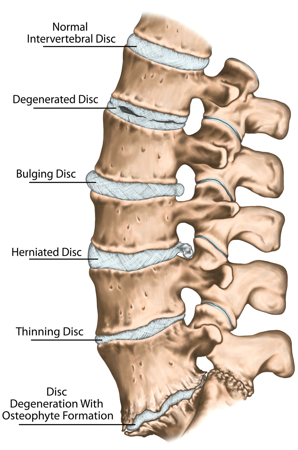 These injuries can result in pain down one or both legs. Disc injuries also tend to have an extension directional preference. You can use this preference to treat the injury and alleviate symptoms. -